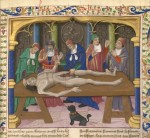 Dissection, De proprietatibus rerum (BNF Fr. 218, fol. 56), fourth quarter of the 15th century